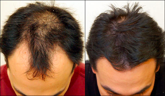 profollica-review-what-are-the-results-for-hair-growth-does-profollica-work-reviews-here-before-and-after-photos-result-hair-stimulator-buy-amazon-hairloss-restoration-reviews
