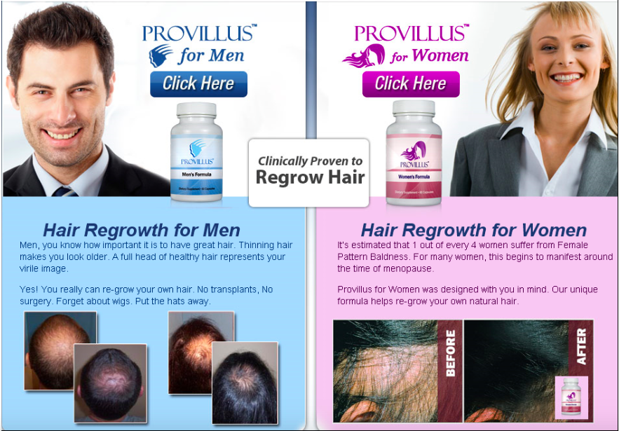 provillus-review-does-provillus-really-work-or-is-it-a-scam-reviews-find-it-here-before-and-after-results-for-men-comments-pills-hairloss-restoration-reviews