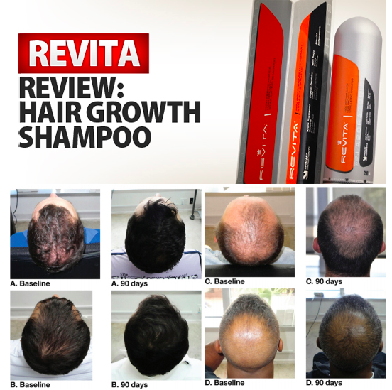 revita-hair-growth-shampoo-review-what-are-the-reviews-is-there-any-side-effects-see-ingredients-here-before-and-after-results-photo-users-comments-hairloss-restoration-reviews