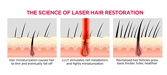 irestore-laser-reviews-does-irestore-laser-hair-work-results-here-at-review-before-after-photos-picture-restore-hair-growth-laser-system-hairloss-restoration-reviews