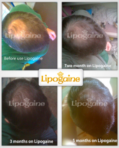 lipogaine-for-men-review-does-this-really-work-how-to-use-lipogaine-get-full-details-here-before-and-after-results-photos-side-effects-sensitive-hairloss-restoration-reviews
