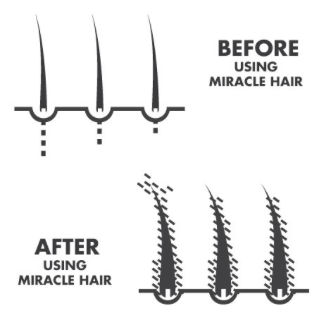 miracle-hair-review-how-does-miracle-hair-work-what-are-the-results-only-here-before-and-after-result-photos-hair-fiber-amazon-hairloss-restoration-reviews