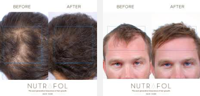 nutrafol-review-is-this-a-real-deal-for-hair-loss-treatment-or-is-there-any-side-effects-see-here-pills-for-men-women-result-reviews-hairloss-restoration-reviews
