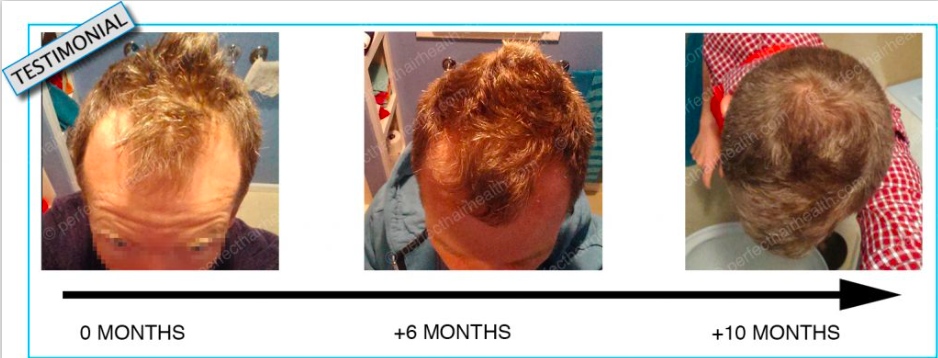 perfect-hair-health-review-a-complete-review-from-before-after-results-photos-ebook-pfd-here-does-it-work-how-it-works-hairloss-restoration-reviews