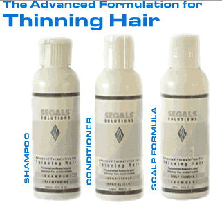 segals-hairloss-solutions-review-see-my-before-and-after-results-here-real-review-from-real-user-must-see-treatment-how-it-works-shampoo-conditioner-formula-hairloss-restoration-reviews