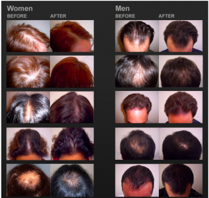 Evolution-Hair-Loss-Institute-Laser-Products-Review-Before-and-After-Results-Pictures-Only-Here-IGrow-Laser-LC-Elite-Laser-Hair-Growth-LC-PRO-LaserCap-Hairloss-Restoration-Reviews