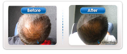 FoliActive-Review-Combats-Hair-Loss-Effectively-See-Complete-Overview-of-Pills-Spray-and-Laser-Foli-Active-Results-Laser-Comb-Pictures-Hairloss-Restoration-Reviews
