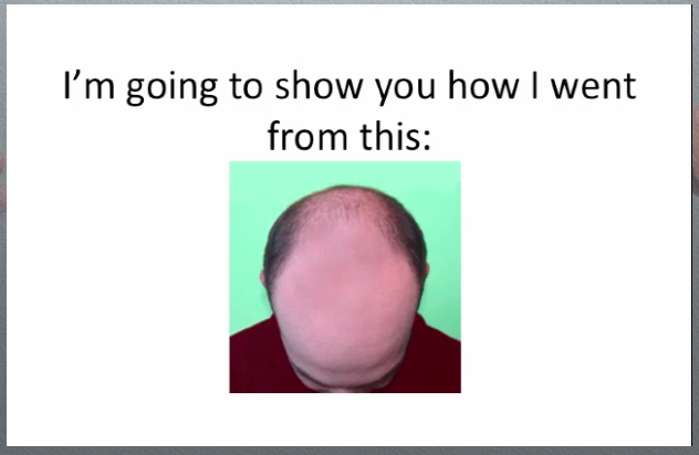 the-rebuild-hair-program-review-does-the-rebuild-hair-program-pdf-work-only-here-website-before-and-after-protocol-results-hairloss-restoration-reviews