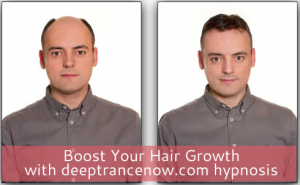 deeptrancenow-hair-growth-hypnosis-a-comprehensive-review-a-must-read-before-and-after-picture-result-review-hairloss-restoration-reviews