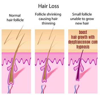 deeptrancenow-hair-growth-hypnosis-a-comprehensive-review-a-must-read-before-and-after-pictures-results-review-hairloss-restoration-reviews