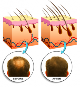hair-again-review-does-hair-again-supplement-really-work-go-through-this-review-to-find-out-pills-capsules-results-hairagain-results-hairloss-restoration-reviews