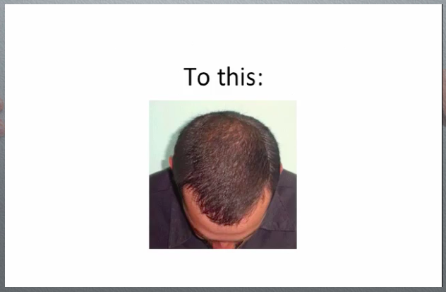 the-rebuild-hair-program-review-does-the-rebuild-hair-program-pdf-work-only-here-website-before-and-after-protocol-results-picture-hairloss-restoration-reviews