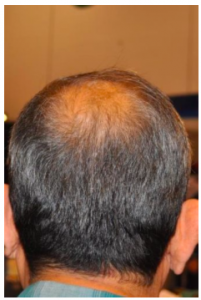 RX4-Scalp-Cream-Review-Is-The-RX4-Hair-Loss-Restoration-Scalp-Cream-An-Effective-Hair-Loss-Treatment-Option-Only-Here-Before-After-Results-1-Hairloss-Restoration-Reviews