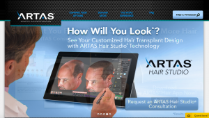 The-ARTAS-System-Review-Will-There-Hair-Transplant-System-Leave-up-to-Their-Claims-Read-Complete-Information-Here-Program-Before-and-After-Results-Website-Hairloss-Restoration-Reviews