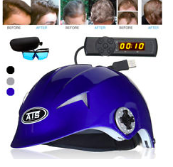 64-Diodes-Laser-Cap-Review-Is-This-a-Proven-Laser-Helmet-To-Work-Effectively-See-Details-Here-Before-and-After-Result-Reviews-Hairloss-Restoration-Reviews