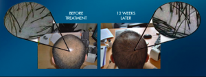 Hair-Growth-Laser-50-Review-Is-This-Worth-The-Claims-What-Are-the-Reviews-See-Complete-Information-Laser-Device-Before-After-Results-Website-Hairloss-Restoration-Reviews
