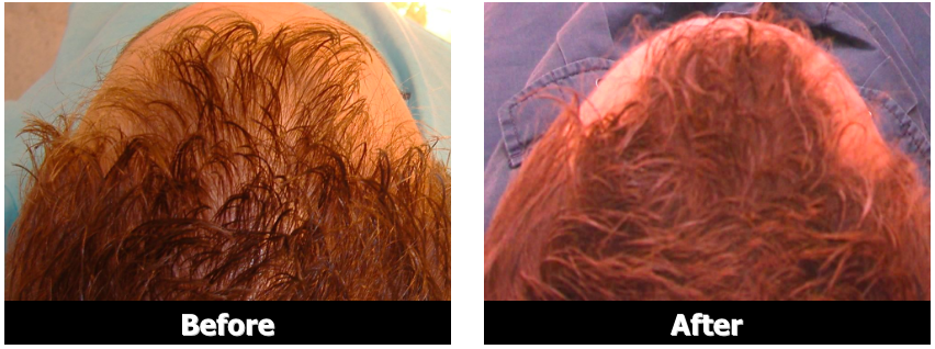 Lasergain-Xl-Review-Is-This-As-Effective-As-Claimed-Find-Out-Here-Before-and-After-Results-Picture-Reviews-eBay-Laser-Gain-Hair-Growth-Hairloss-Restoration-Reviews