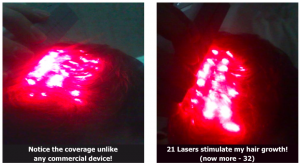 Lasergain-Xl-Review-Is-This-As-Effective-As-Claimed-Find-Out-Here-Before-and-After-Results-Reviews-eBay-Laser-Gain-Hair-Growth-Hairloss-Restoration-Reviews