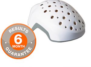 Theragrow-Review–Does-This-Laser-Helmet-Work-As-Claimed-Read-Complete-Review-Here-Hair-Low-Laser-Helmet-for-Women-Before-and-After-Results-Reviews-Guarantee-Hairloss-Restoration-Reviews